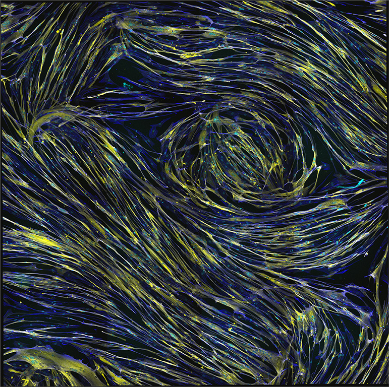 Van Gogh Cellulaire